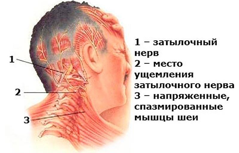 боли шея сзади слева болит рука