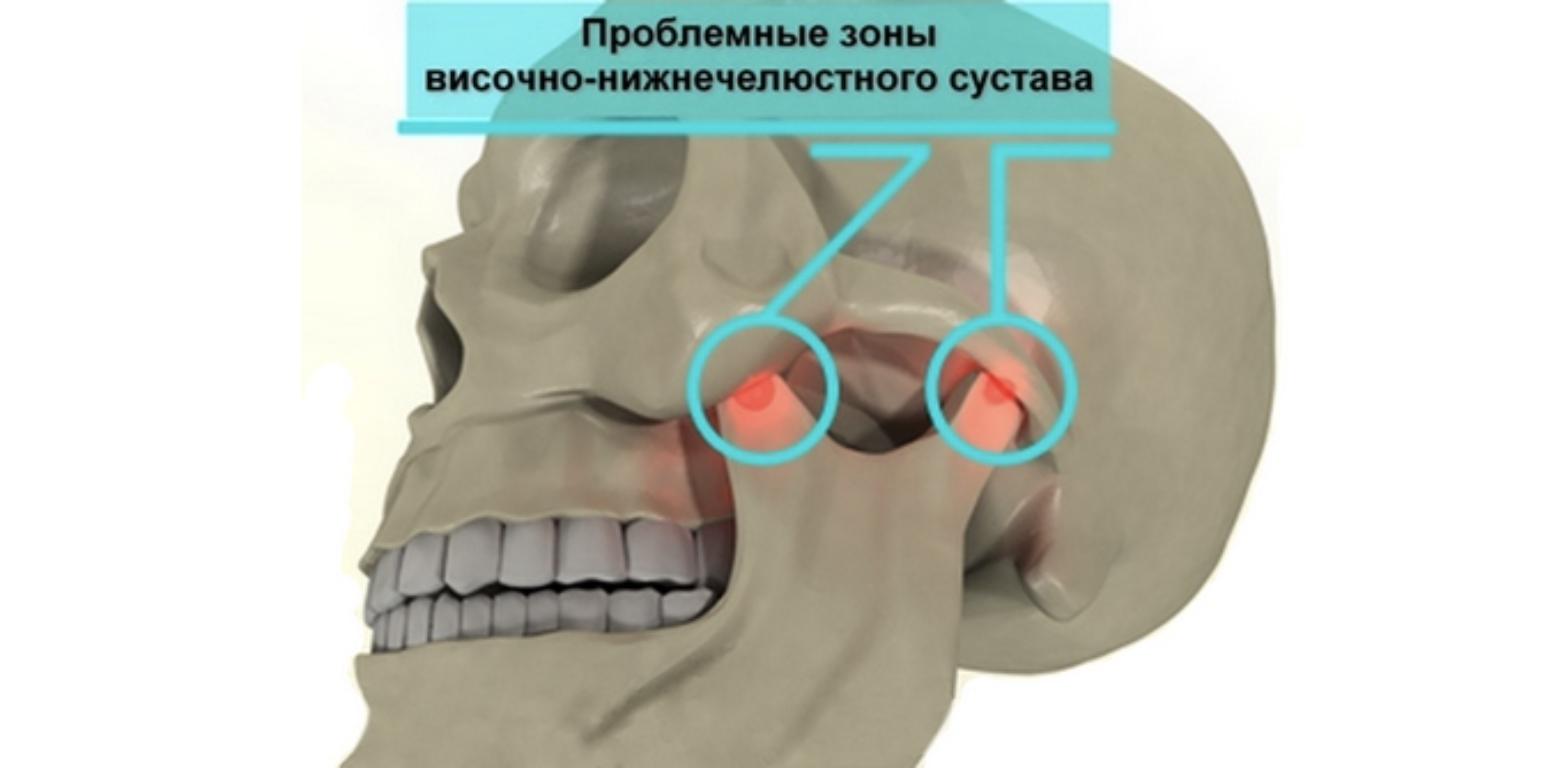 Тазобедренный Сустав Щелкает И Болит