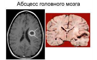 Причины и симптоматика абсцесса головного мозга: методы лечения и прогноз