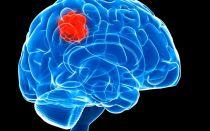 Первые признаки рака мозга, диагностика и лечение
