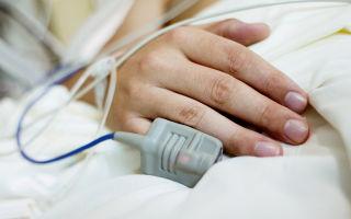 Кома второй степени: характеристика и признаки, возможные причины, первая помощь и терапия