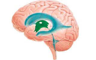 Увеличенные желудочки головного мозга у грудничка: диагностика и лечение