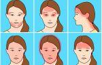 Головная боль: ее виды и отличия