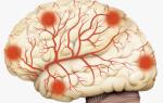 Диагностика сосудов головного мозга: когда необходима обязательная проверка и как ее пройти?