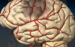 Почему возникает сужение сосудов головного мозга и как его вылечить
