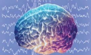 Что означают диффузные изменения биоэлектрической активности головного мозга легкой степени