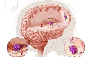 Причины, симптоматика и лечение каверномы головного мозга