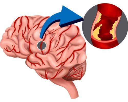 Приступ транзиторной ишемической атаки: насколько опасен и как его лечить