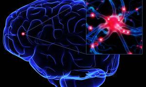 Эпилепсия — болезнь гениев: виды заболевания и его симптоматика