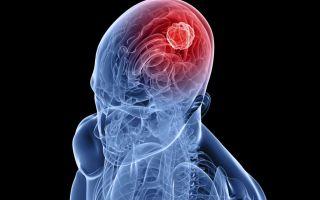 Специфика удаления опухоли головного мозга: виды операций и реабилитационный период