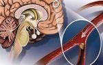 Причины возникновения, диагностика и лечение склероза сосудов головного мозга