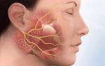 Проявления и симптомы неврита слухового нерва: всё о заболевании уха, лечение и профилактика
