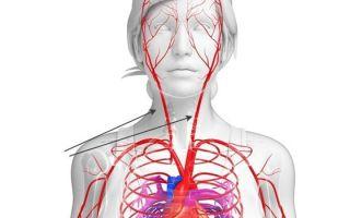 Опасность возникновения тромба в сонной артерии: почему возникает, как распознать и лечить