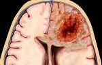 Виды опухолей головного мозга: основные типы, методы их диагностики и прогноз