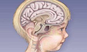 Симптомы менингита у детей: методика диагностики и лечения