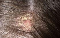 Виды болячек на голове: их признаки и лечение