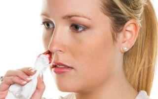 Причины носового кровотечения при головной боли: лечение и профилактика