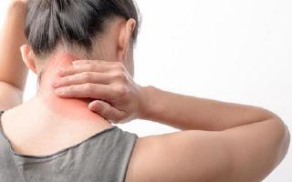 Причины возникновения фибромиалгии, ее основные симптомы и методы лечения