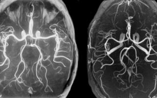 Особенности проведения магнитно-резонансной ангиографии сосудов головного мозга