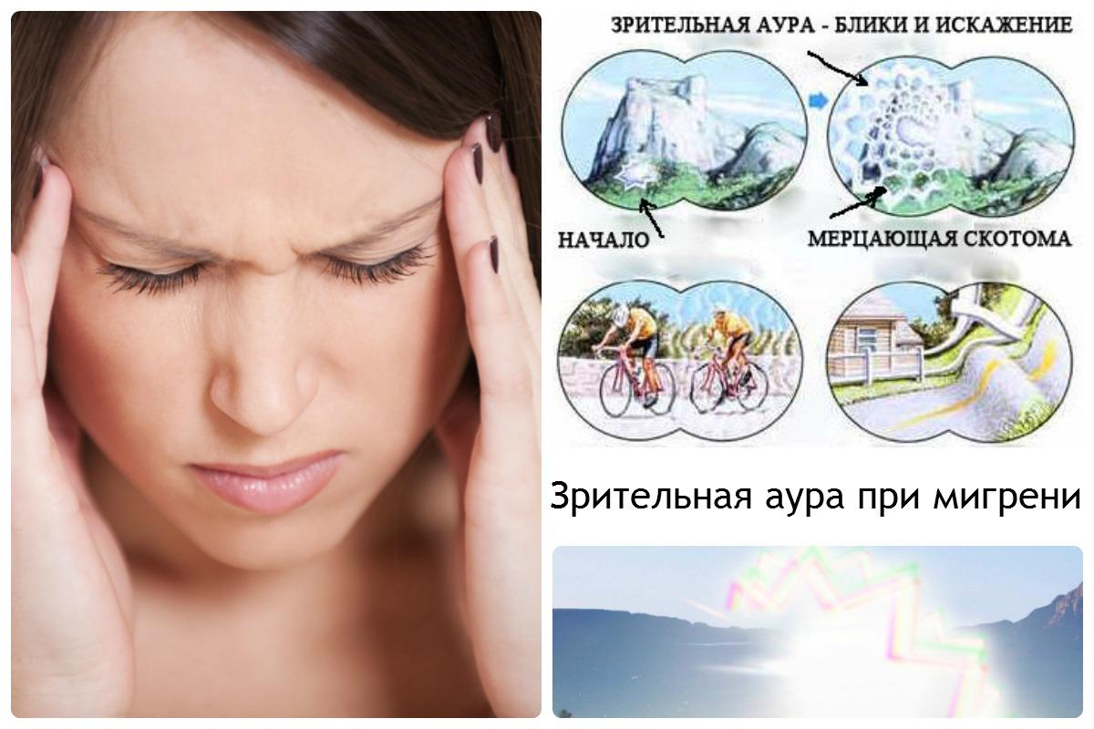 чем грозит мигрень