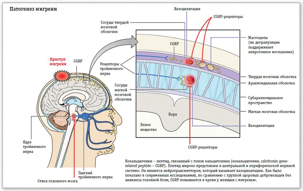 патогенез мигрени