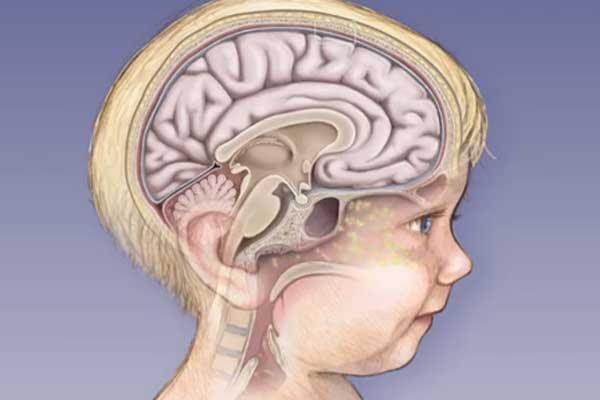 голова ребенка , строение мозга