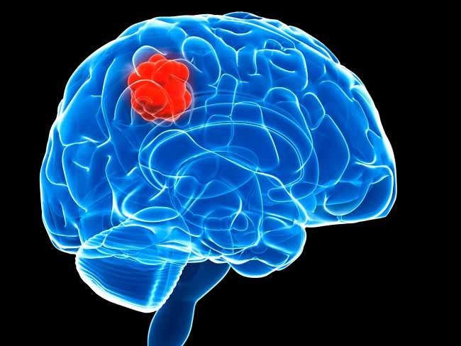 Симптомы рака мозга - признаки болезни на ранних стадиях у взрослых и детей