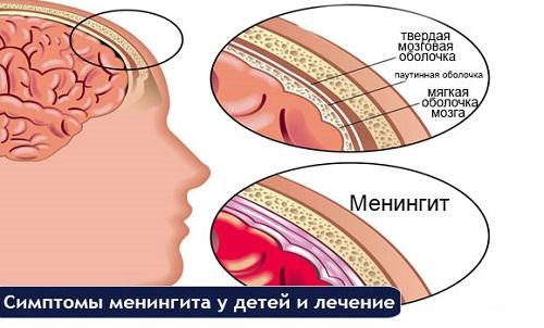 голова и оболочки мозга