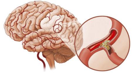 мозг и сосуды