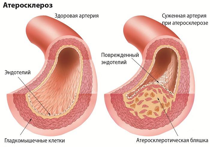 Артерия здоровая и поврежденная