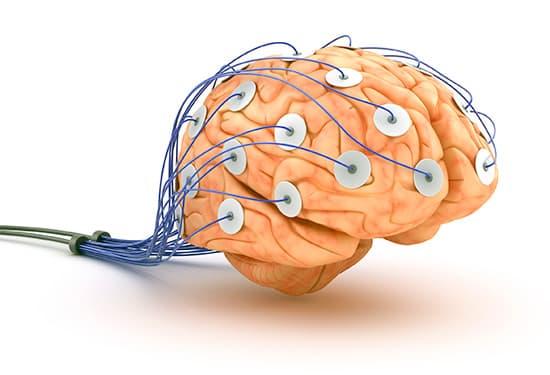 мозг с электродами