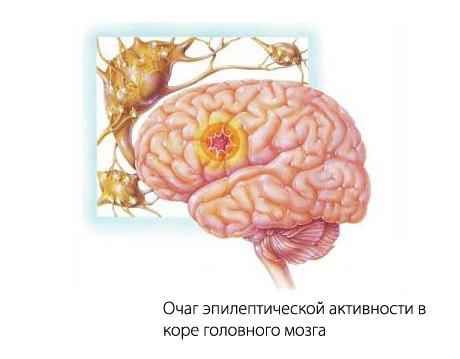 эпилептический очаг в мозге