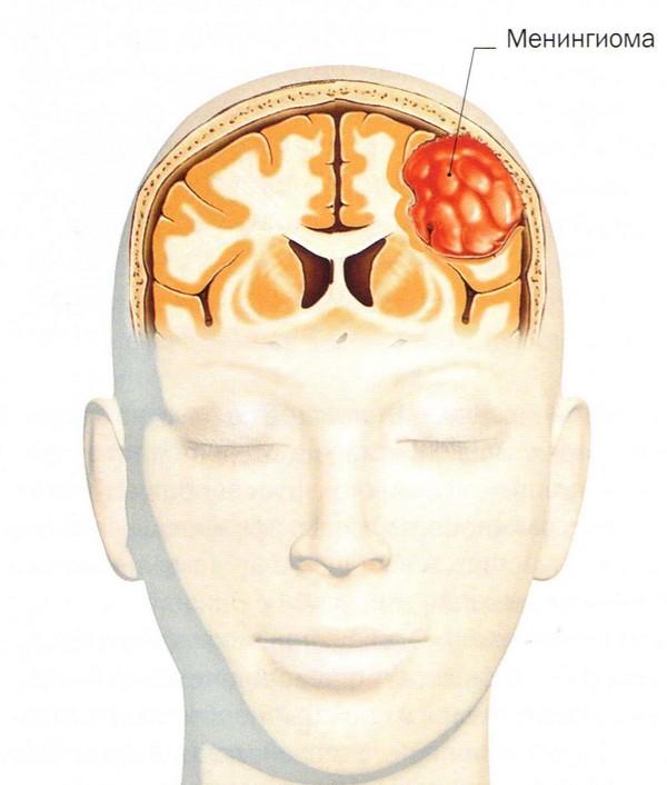 Опухоль головного мозга менингиома
