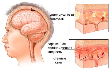 мозг человека зараженный менингитом