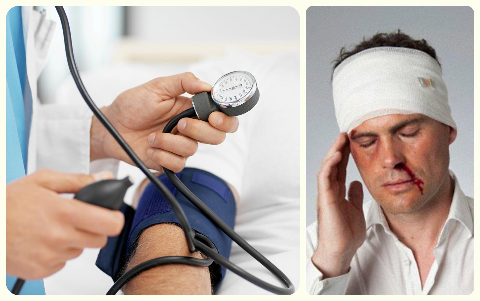 гипертония, травма головы , рэг
