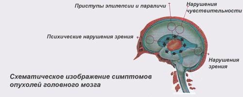 Схема: опухоль головного мозга симптомы