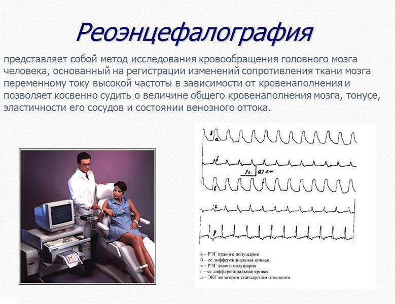 реоэнцефалограмма