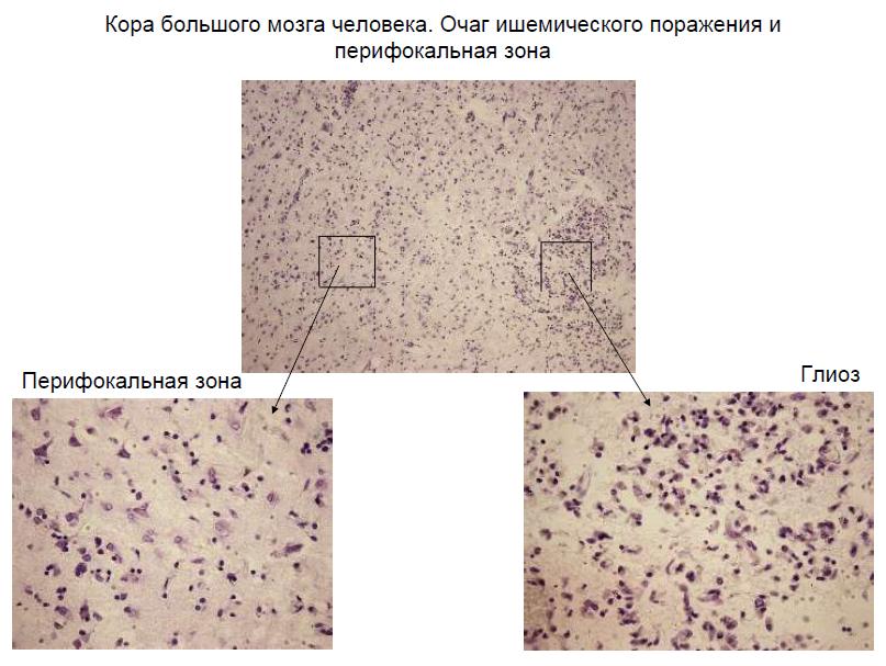 мозг под микроскопом