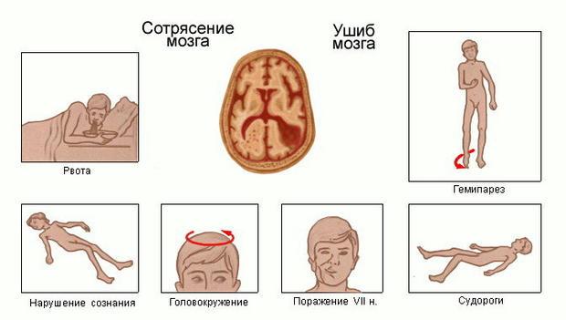 Сотрясение мозга у ребенка симптомы