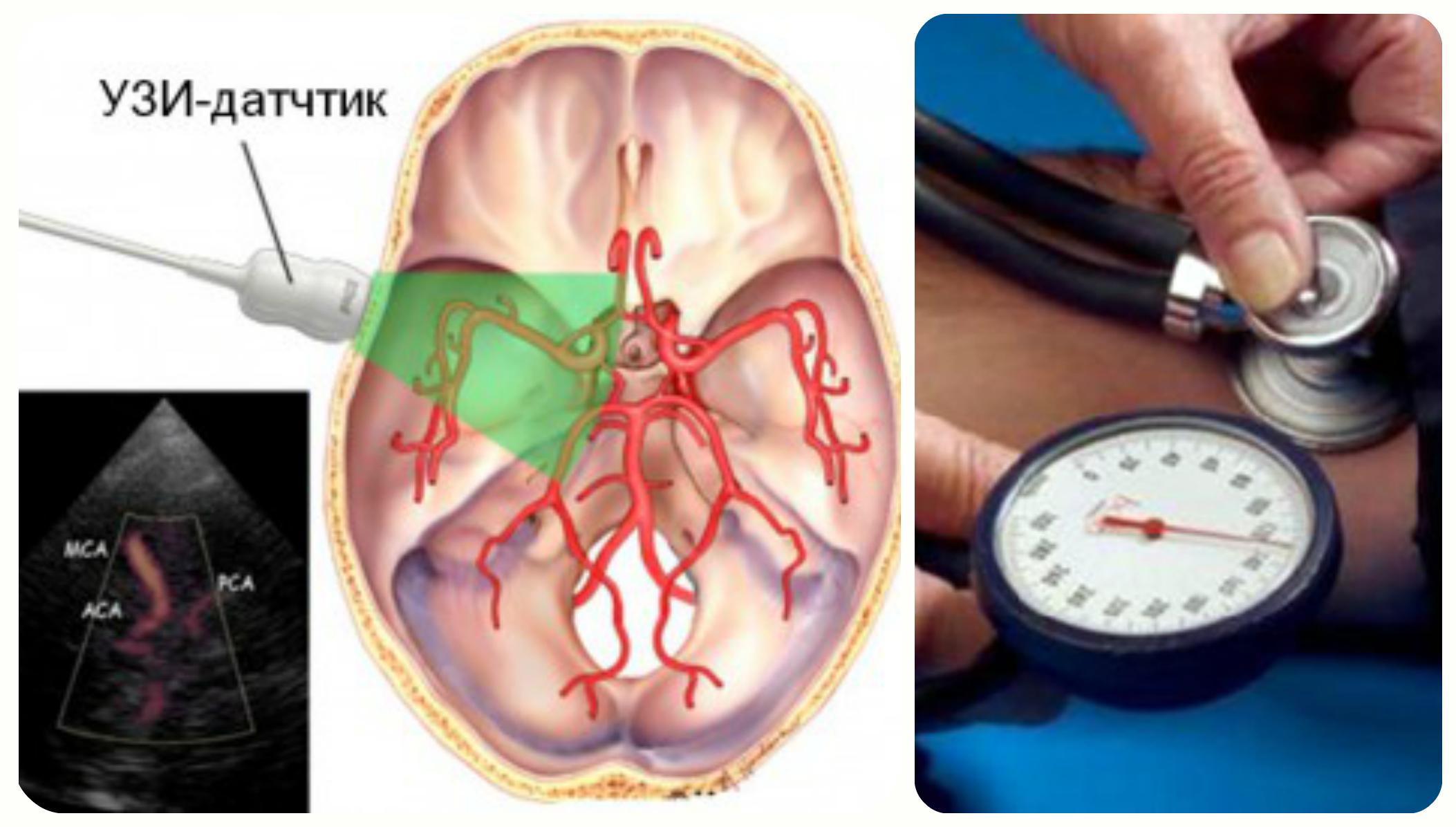 мозг и узи сосудов, измерение давления
