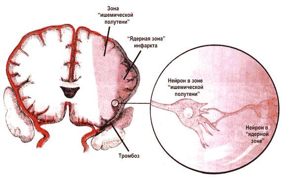 строение мозга и его сосудов