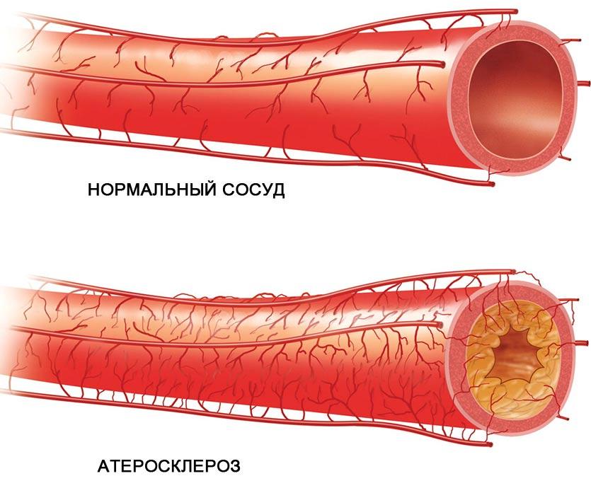 сосуды атеросклероз
