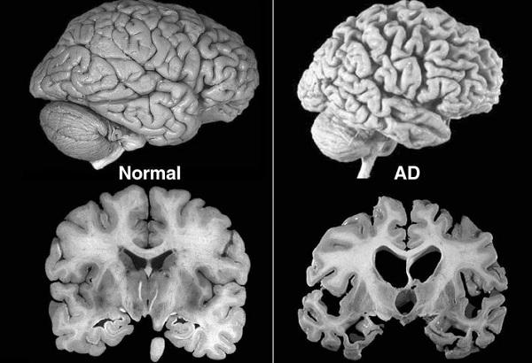 степень атрофии мозга