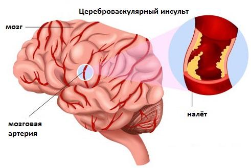 Цереброваскулярный инсульт