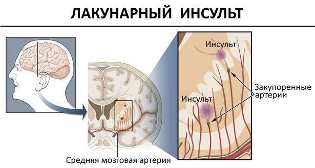 лакунарный инсульт симптомы первые признаки