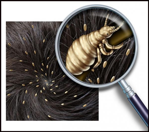 вши и гниды в волосах