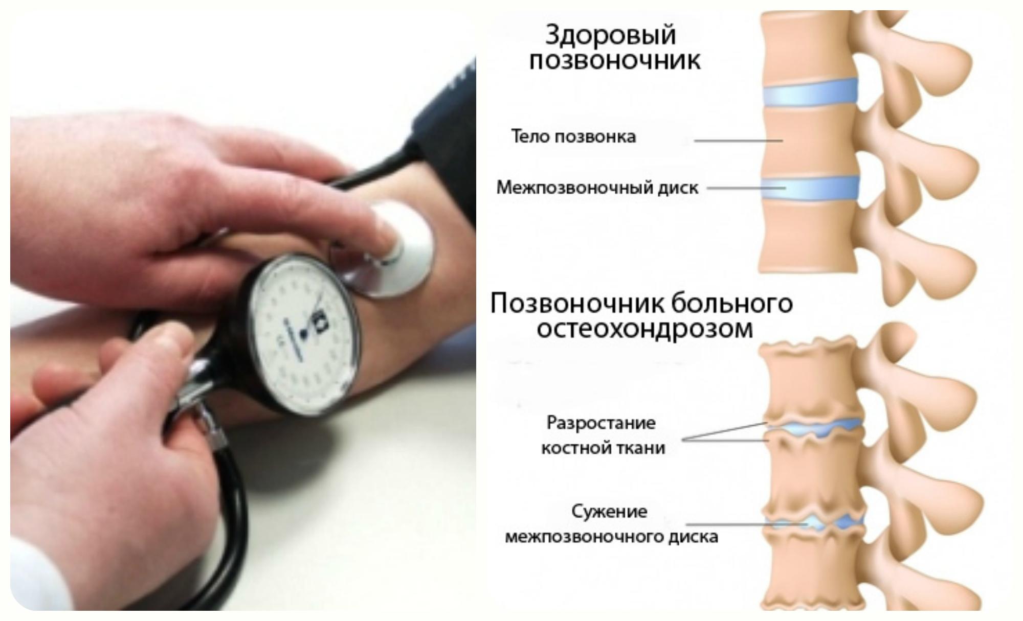 меряют давление и остеохондроз
