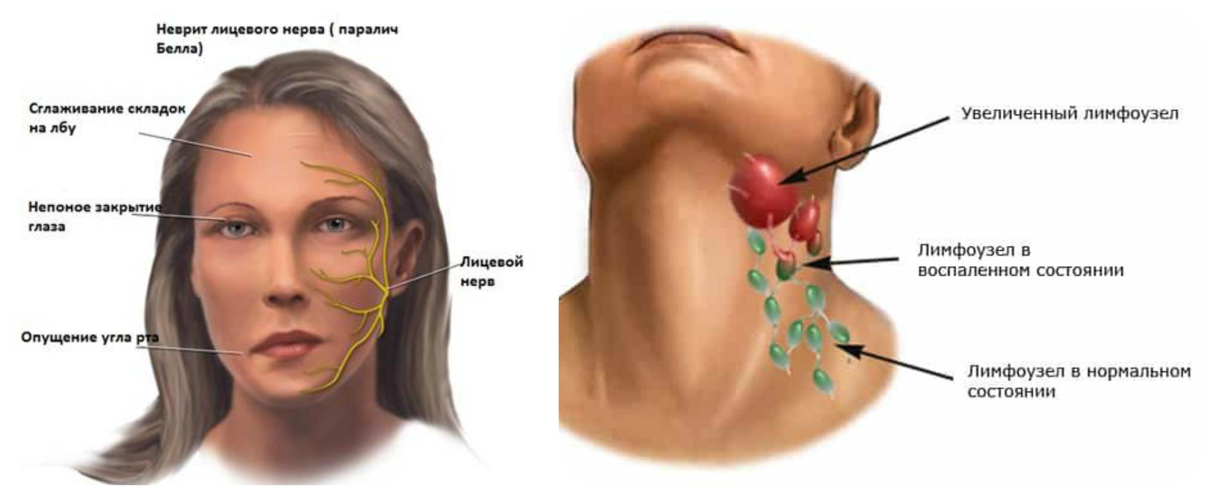 неврит лицевого нерва лимфоузлы