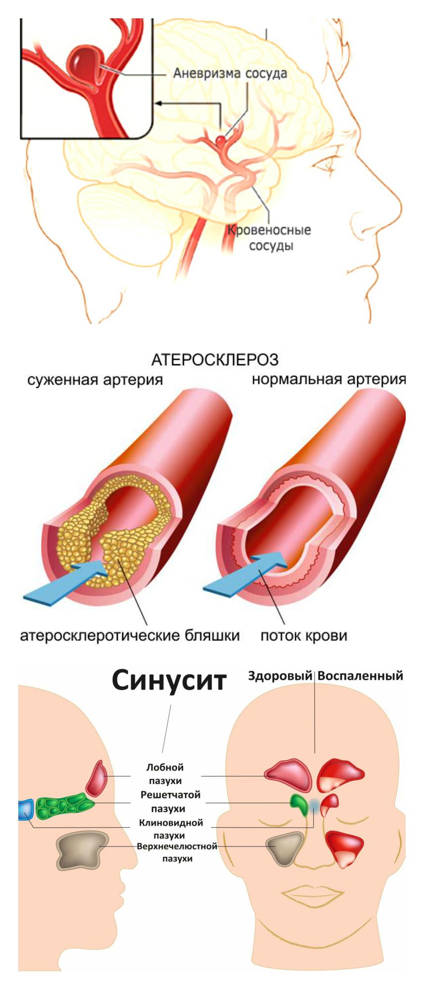аневризма, атеросклероз, синусит