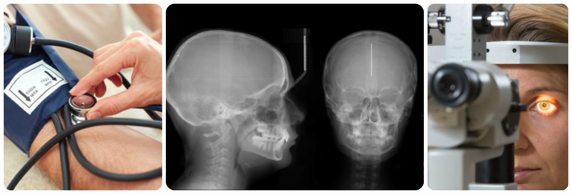 рентген, измерение давления ,обследование глазного дна